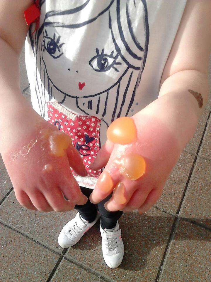 Dziewczynka zerwała kwiatuszka rosnącego nad brzegiem rzeki. Dwa dni później skóra na jej dłoniach wyglądała tak!