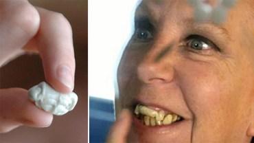 Bała się dentysty tak bardzo, że postanowiła zastąpić zepsute zęby starą gumą do żucia! Bardziej obrzydliwe, czy głupie?