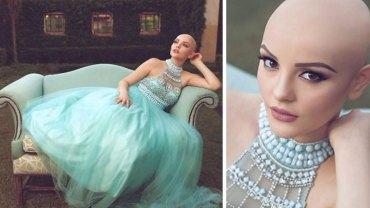"""""""Rak nie powstrzyma mnie od bycia księżniczką"""" – mówi 17-letnia Andrea i decyduje się na odważną sesję bez peruki!"""