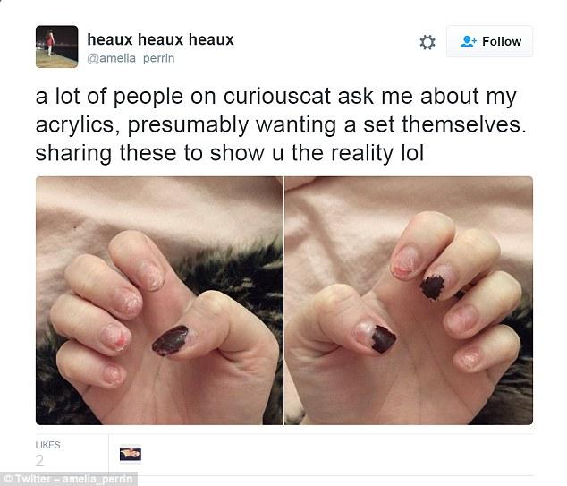 Przez 6 lat nie zdejmowała akrylowych paznokci. Gdy jeden tips odpadł, pokazała wszystkim, jak wygląda jej naturalna płytka!