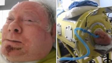 Choć wygląda jak maszyna szalonego naukowca, ratuje ludzkie życie. Paul spędził w tym urządzeniu 65 lat i wcale nie żałuje