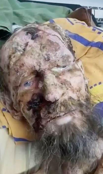 Przeżył w jaskini niedźwiedzia ponad 3 tygodnie. Gdy go znaleźli, myśleli, że to mumia!