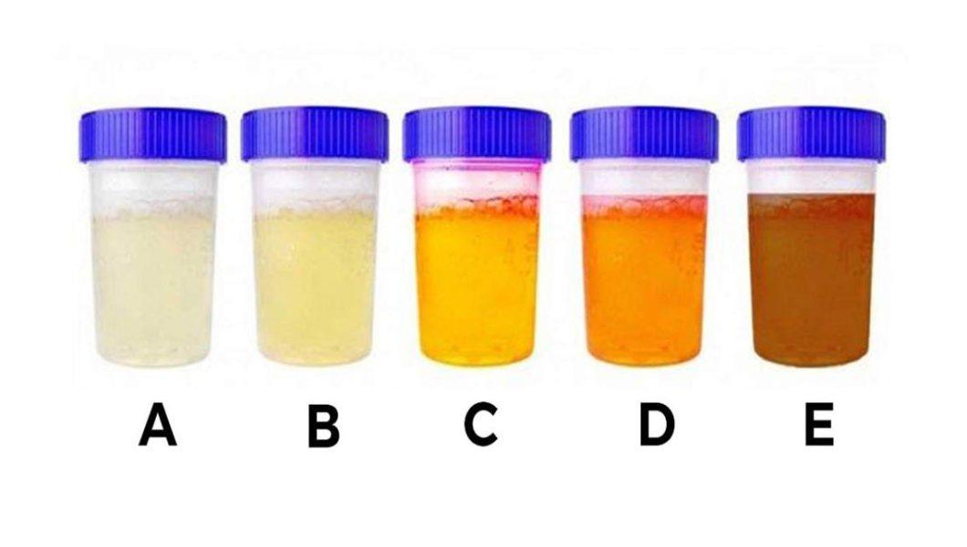 Kolor moczu dużo powie na temat twojego zdrowia! Zdradza, ile wody powinieneś pić