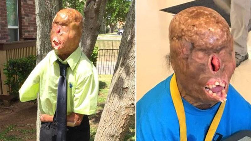 Makabrycznie poparzony nastolatek, chce odzyskać wzrok i spojrzeć prześladowcom w oczy