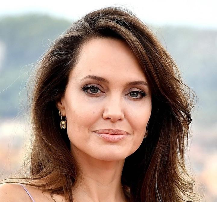 """Ile kosztuje twarz """"jak z Instagramu""""? Sprawdź, ile zapłaciły Angelina Jolie, czy Kylie Jenner za swoje """"naturalne"""" piękno"""
