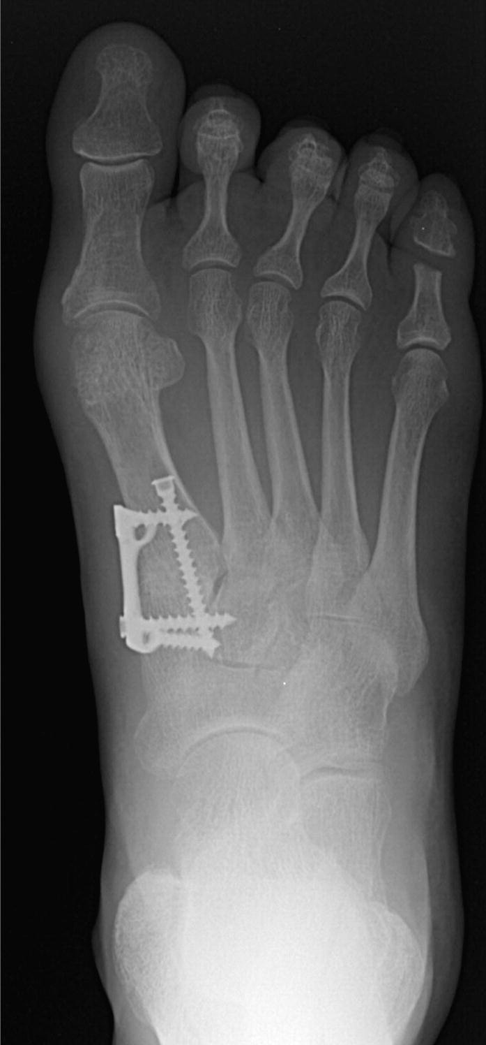 Lapidus Arthrodesis With A Single Lag Screw And A Locking