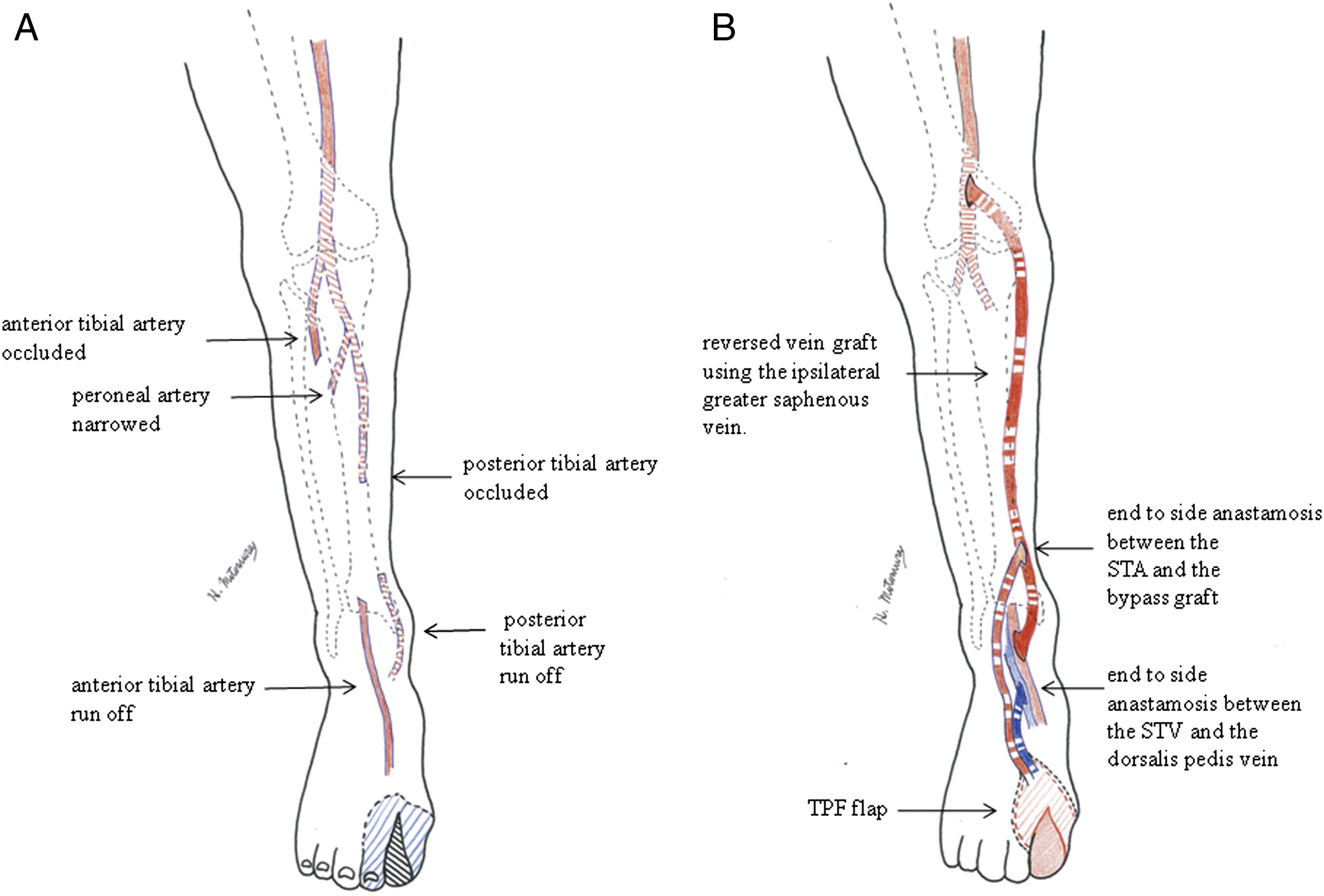 A Hybrid Therapy For Buerger S Disease Using Distal Bypass