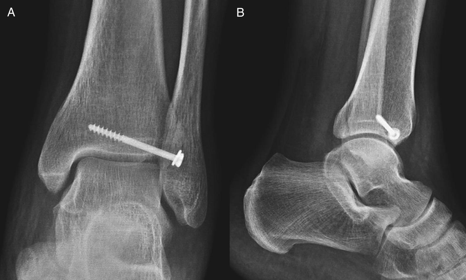 Epiphyseal Bone Fracture