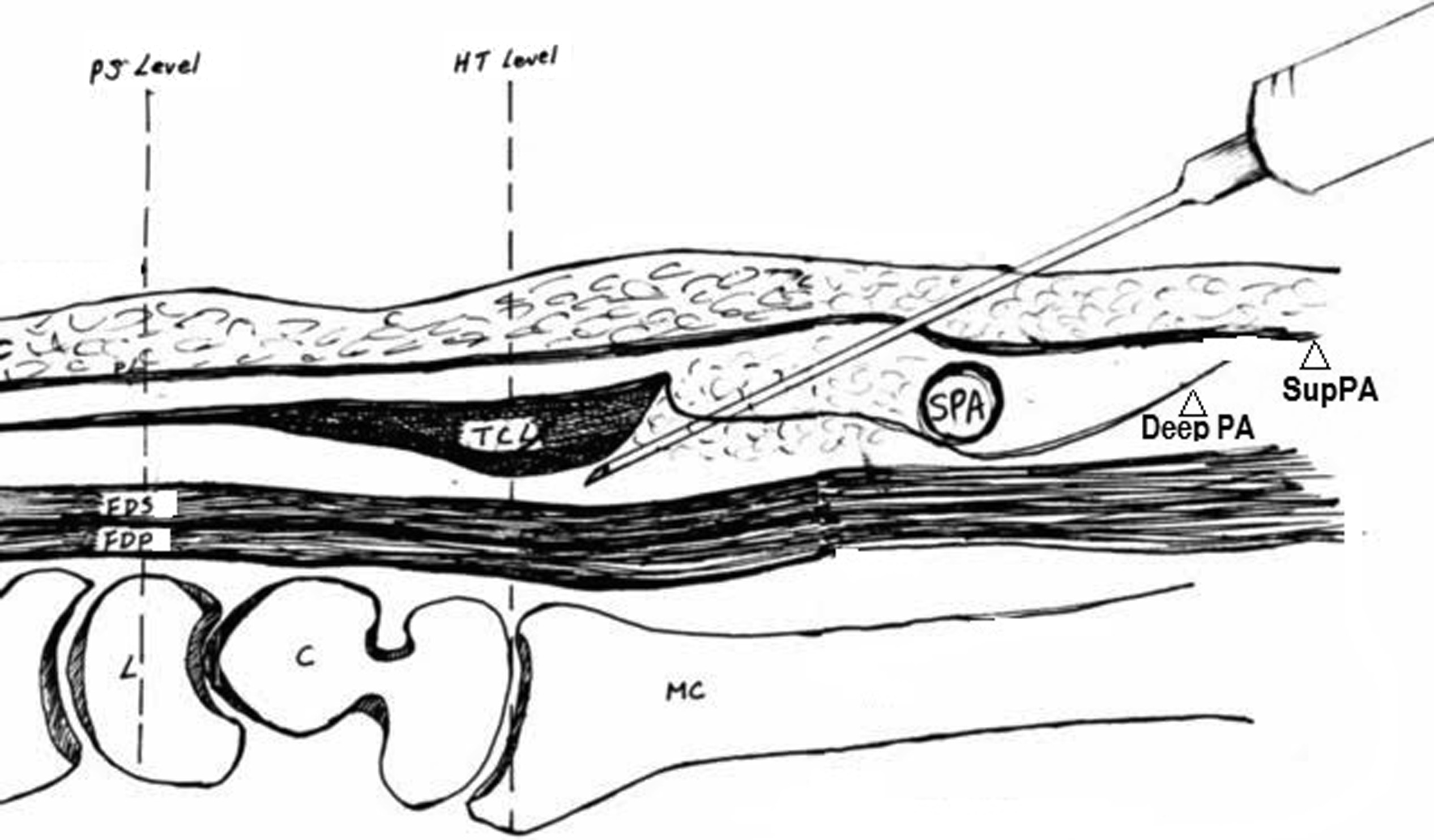 A Cadaveric Study For The Improvement Of Thread Carpal