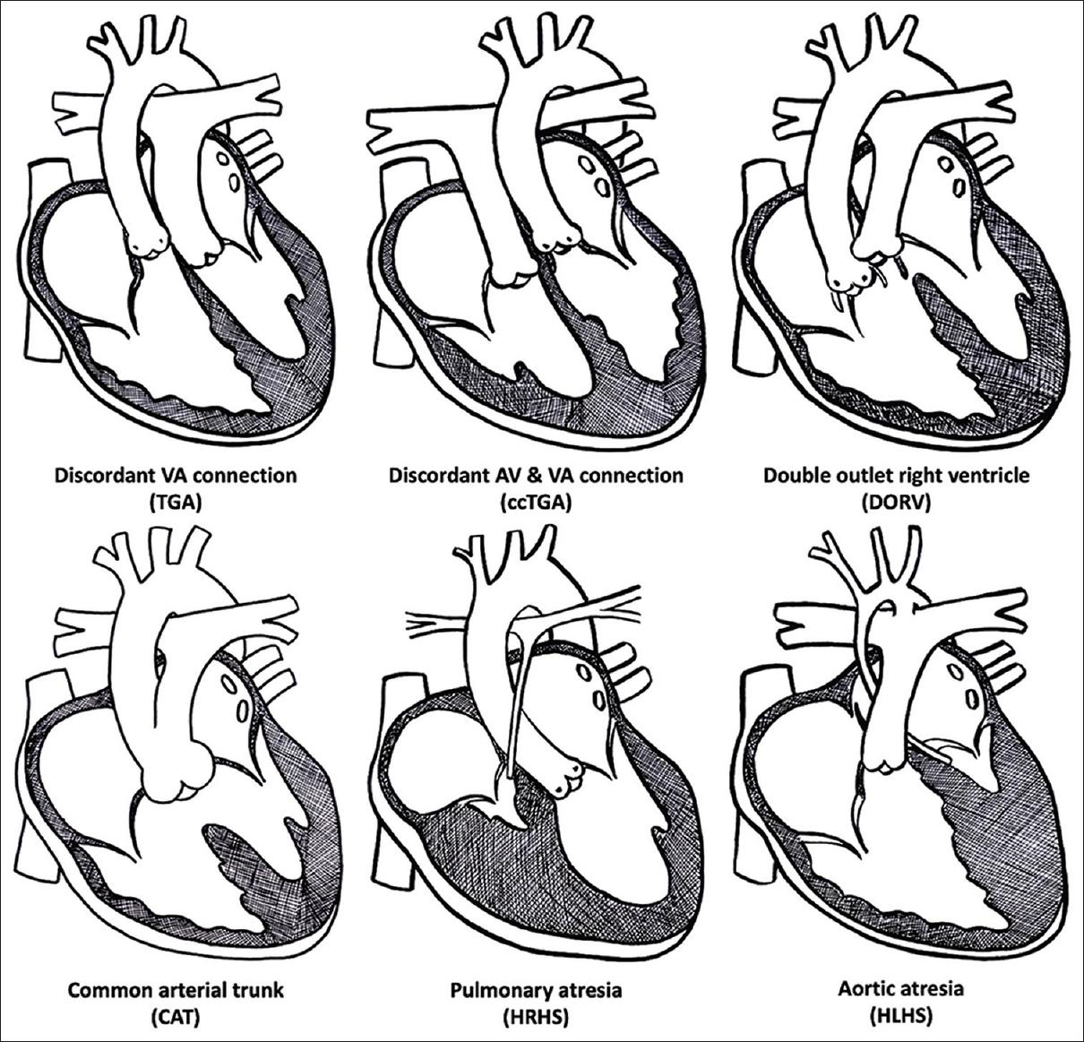 Sequential Segmental Approach To Congenital Heart Disease