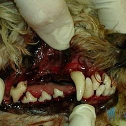 Tentýž pacient po odstranění zubního kamene ultrazvukem, u některých zubů bylo nutné provést extrakci pro pokročilou parodontózu. Velmi dobře jsou patrné zarudlé okraje dásní v důsledku zánětu a obnažené krčky stoliček.