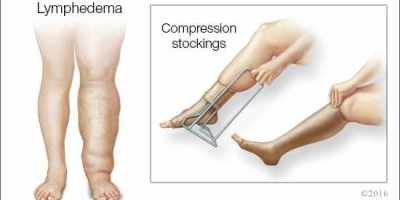 What to do to avoid swollen legs or arms