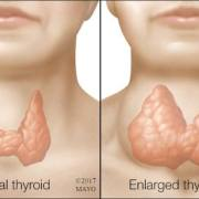 enlargement of thyroid