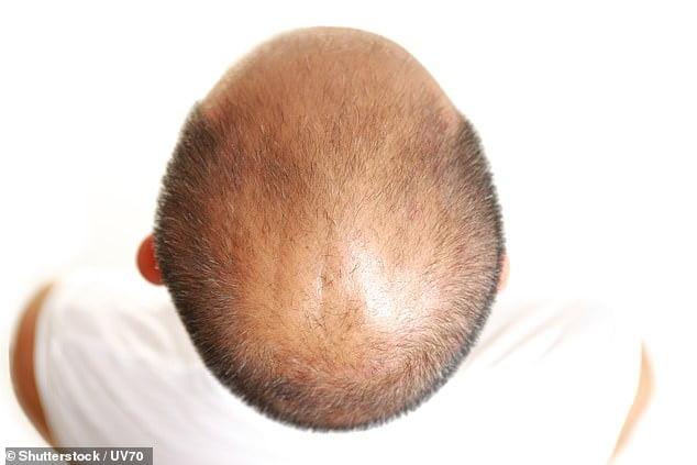 Bald men at higher risk of severe Covid-19