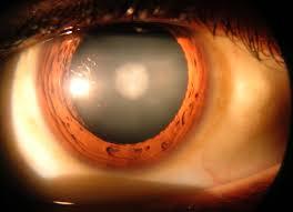 Cataract : Symptoms & Remedy