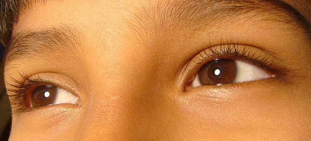 7 Best solutions for dry eyes