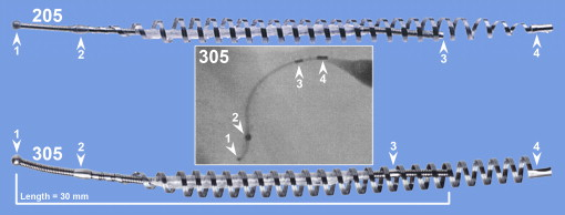 Hysteroscopic Sterilization: 10-Year Retrospective ...