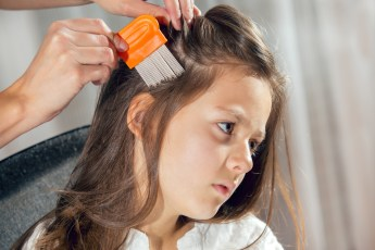 head lice prevention
