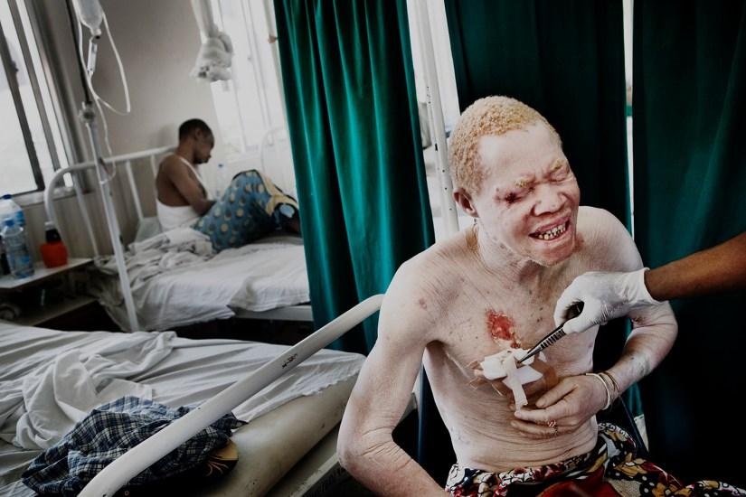 Image result for tanzania albino genocide