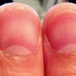 Thumbnail Damage Hook Grip Deadlifts