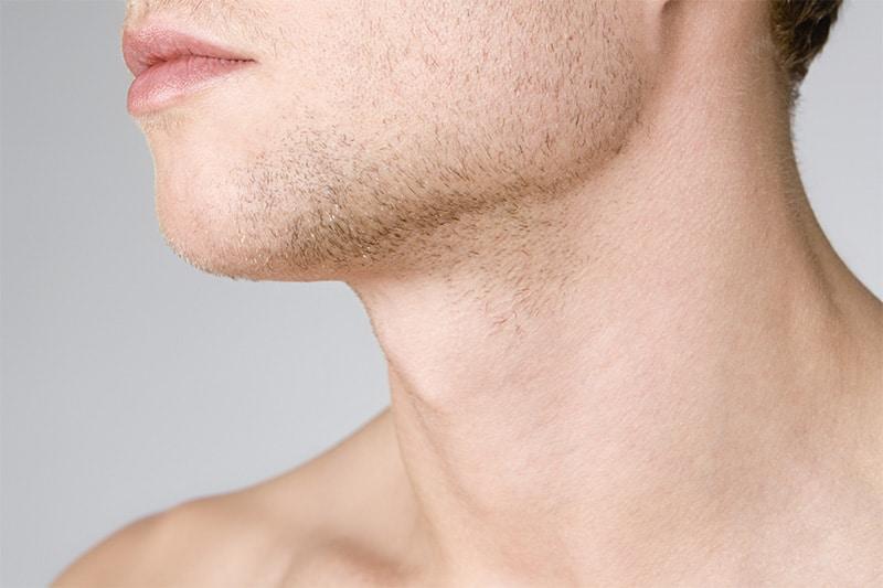 Neck Lift Options for Men