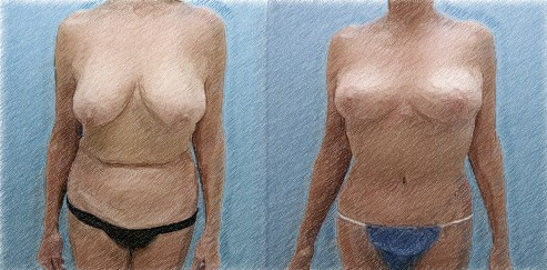 Structural breast lift and high lateral tension abdominoplasty   Dr. John Q. Cook