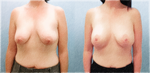 structural breast lift and implants | John Q. Cook, M.D.