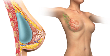 How Breast Augmentation effects the nipple and areola