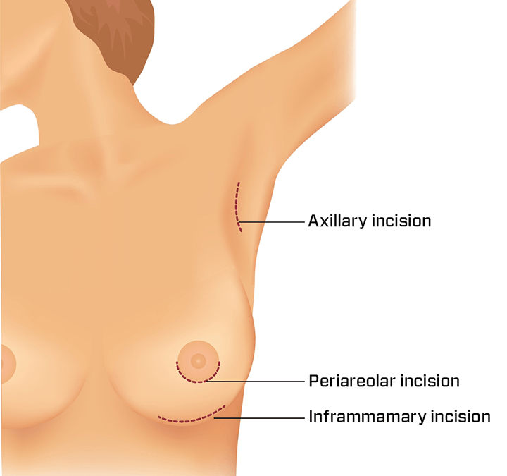 The base of the breast is important in breast implant surgery