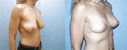 structural breast surgery   John Q. Cook, M.D.   Whole Beauty Institute