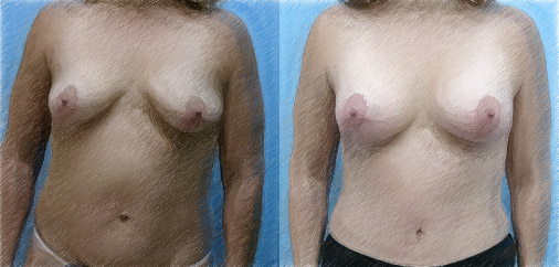 Structural breast lift | John Q. Cook, M.D. | Chicago and Winnetka