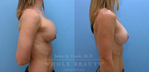 breast-augmentation-pec-repositioning-1b1