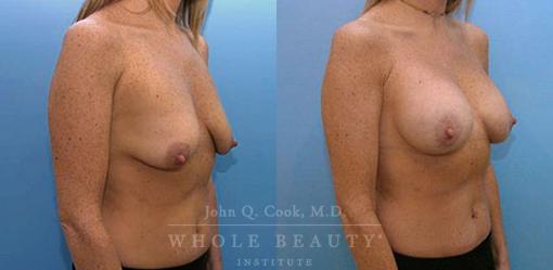 periareolar-mastopexy-with-implants-1b
