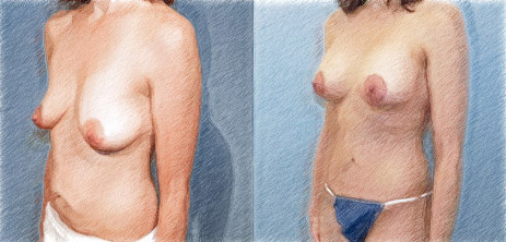 Structural breast augmentation with lift | Dr. John Q. Cook