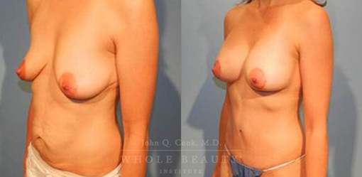 abdominoplasty-case-06-side