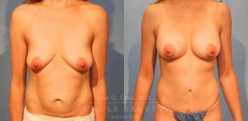 abdominoplasty-case-15