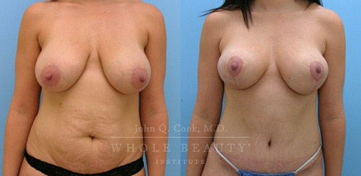 breast-lift-case-5