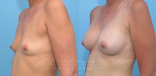 breast-augmentation-case-06