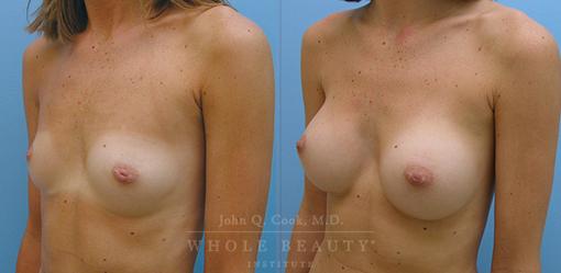 breast-augmentation-case-08