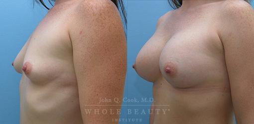 breast-augmentation-case-11