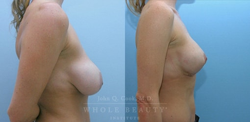 breast-lift-case-4