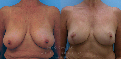 breast-reduction-case-4-fixed