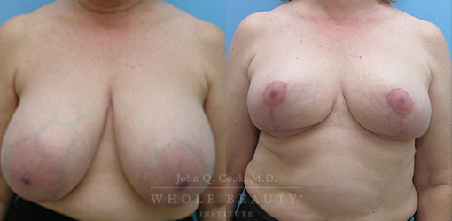 breast-reduction-case-5-fixed
