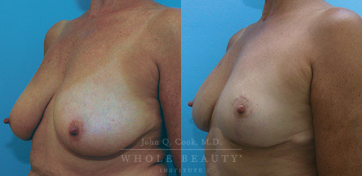 breast-reduction-case-side-4-fixed