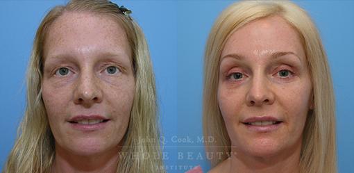 Eyelid Surgery & Brow Lift