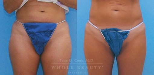 liposuction-case-4-01