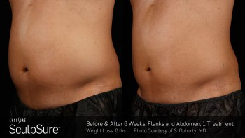 SculpSure treatment before and after.
