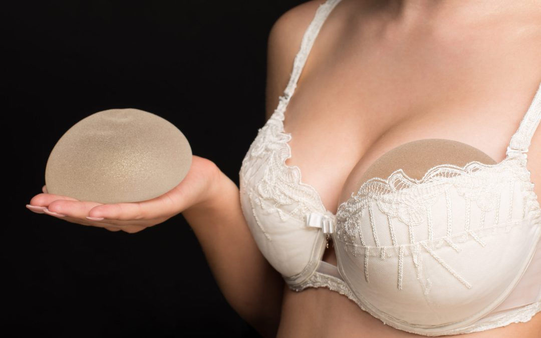 When to Replace Breast Implants