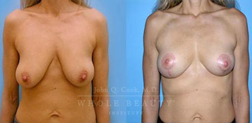 breast-lift-case-7