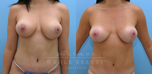 breast-lift-case-5-2-front